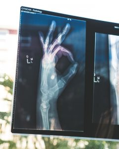 X-ray scan showing skeletal hand holding 'ok' symbol